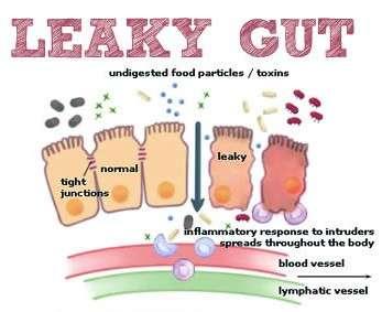 leaky-Gut (1)